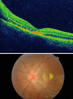 Haut : tomographie par cohérence optique montrant un œdème papillaire avec extravasation atteignant la macula (a) et une lésion des photorécepteurs (b). En bas : Fond d'œil montrant un œdème papillaire et une étoile maculaire.