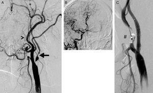A) Lesión suboclusiva de la arteria carótida mostrando todos los criterios cualitativos para su definición: arteria carótida interna (flecha) de menor diámetro que la carótida externa (cabeza de flecha); opacificación distal en el territorio de la carótida interna, reducida con respecto a la externa (*); presencia de circulación colateral intracraneal compensadora (B). C) Resultado tras el implante de stent Cristallo (Invatec-Medtronic). Se aprecia el balón distal (#) del dispositivo MoMa (Invatec-Medtronic) inflado en el inicio de la arteria carótida externa.