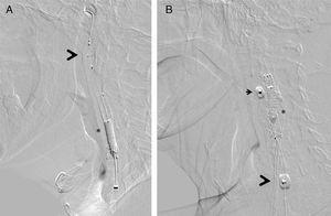 Dispositivos de protección embólica, en el momento de procedimiento consistente en la posdilatación del stent implantado (*). A) Protección distal con filtro Angioguard (Cordis), que se posiciona en la porción vertical del segmento petroso de la arteria carótida interna cervical (cabeza de flecha). B) Protección proximal mediante MoMa (Invatec-Medtonic) con su balón distal inflado en el inicio de la arteria carótida externa (cabeza de flecha pequeña) y balón proximal en la arteria carótida común (cabeza de flecha grande): de esta forma se produce un bloqueo de flujo anterógrado a través de la zona lesional, con aparición retrógrada de flujo contralateral que protege contra la embolización.