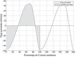 Curva típica de flujo promedio obtenida en el acueducto de Silvio durante 2 ciclos cardiacos consecutivos. Los valores positivos indican flujo caudocraneal y los valores negativos flujo craneocaudal. El área sombreada indica el volumen por ciclo.