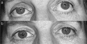 a) Ptosis palpebral derecha. b) Resolución de la ptosis tras instilación de fenilefrina.