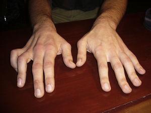 Paciente 1. Amiotrofia de los interóseos dorsales de la mano derecha con tendencia a la garra cubital.