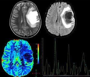 Paciente femenina de 12 años, sin antecedentes de importancia, quien presentó pérdida aguda de la visión en el ojo derecho (OD) no tratada, 4 meses después presentó afasia y hemiplejía derecha; se solicitó resonancia magnética cerebral (RM), donde se observa: arriba T2 axial y Fluid Attenuation Inversion Recovery (FLAIR) axial. Se observa lesión frontal derecha de comportamiento hiperintenso en T2, hipointenso en T1 y FLAIR con edema vasogénico adyacente y escaso efecto de masa sobre la línea media y el sistema ventricular. Hay imágenes indicativas de estructuras vasculares en el interior de la lesión; abajo, imagen de perfusión cerebral donde se observa disminución de la captación y espectroscopia por RM que demuestra pico de colina a 3,23ppm elevado (que indica un proceso de gliosis y remielinización) y un pico de N-acetil aspartato a 2,05ppm disminuido (que indica daño axonal neuronal) y pico de glutamato y glutamina a 2,4-2,5ppm, hallazgos compatibles con una forma seudotumoral de enfermedad desmielinizante. Se le realizó una biopsia cerebral y los hallazgos histopatológicos son consistentes con LDFS. Se inicia tratamiento con metilprednisolona por 5 días, seguido de un ciclo de plasmaféresis, con excelente respuesta clínica. La paciente recuperó completamente la fuerza del hemicuerpo derecho y el trastorno del lenguaje, permaneció con atrofia óptica del OD. Actualmente, con un seguimiento de un año, sin recaídas.