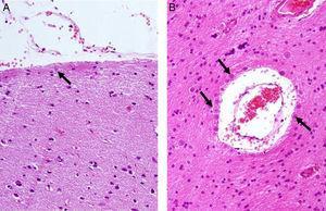 Presencia de cuerpos amiláceos (flechas) en la neocorteza de pacientes con epilepsia del lóbulo temporal farmacorresistente. A) Superficie meníngea (grado 1). B) Alrededor de un vaso sanguíneo con espacio de Virchow-Robin dilatado (sustancia blanca, grado 3). H/E×400.