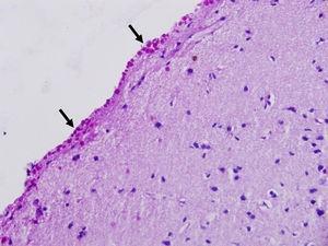 Acumulación difusa de cuerpos amiláceos (flechas) en la neocorteza (superficie meníngea, grado 3) de un paciente con epilepsia del lóbulo temporal farmacorresistente. PAS×400.