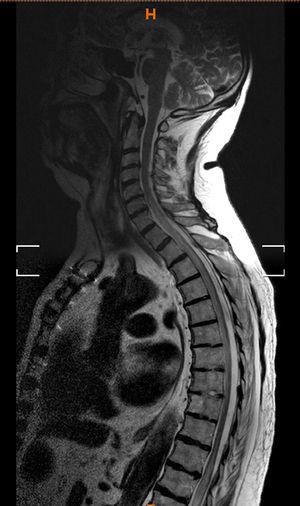 RMN de columna: corte sagital que evidencia una lesión isquémica extensa medular.