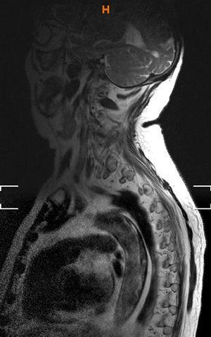 Amplio trombo posterior aórtico en imagen de RMN.