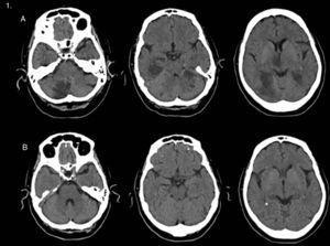 A)La TC simple transversal realizada 4días tras el ictus muestra infartos múltiples que afectan el territorio de ambas arterias cerebrales posteriores, el tálamo derecho y la porción medial del mesencéfalo. B)La TC simple transversal realizada a los 18días muestra la aparente resolución de las lesiones previamente descritas.