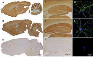 Reactividad del LCR de pacientes con anticuerpos contra LGI1 o Caspr2 en cerebro de rata y cultivos de neuronas. La inmunohistoquímica en cerebro de rata utilizando el LCR de un paciente con anticuerpos contra LGI1 (A y B) y un paciente con anticuerpos contra Caspr2 (D y E) muestra intensa reactividad con el neurópilo que no se observa con el LCR de un paciente control (G y H). La localización de los antígenos (LGI1 y Caspr2) en la superficie neuronal se demuestra en inmunocitoquímica con cultivos de neuronas hipocampales de rata incubados con los LCR de los mismos pacientes (C y F). El panel I muestra la ausencia de reactividad del LCR de un paciente control con cultivos de neuronas. La identidad de los antígenos (LGI1, Caspr2) se demostró en células HEK293 transfectadas (CBA) que expresaban estas proteínas (no se muestra en esta figura).