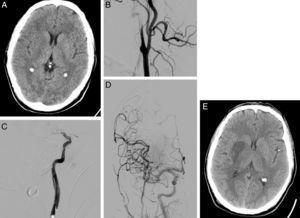 Varón de 58 años que consulta por disartria y hemiparesia izquierda, puntuando NIHSS 14. En la TC craneal se aprecia borramiento del lenticular e ínsula derecha puntuando ASPECTS de 8 (A). En la arteriografía basal se observa oclusión de la arteria carótida interna derecha, con imagen típica de disección en «pico de flauta» (B). Tras atravesar la oclusión carotídea, se objetiva oclusión en el segmento M1 de arteria cerebral media derecha (C). Se realiza una trombectomía mecánica de la oclusión intracraneal y se coloca un stent en la estenosis carotídea, consiguiendo recanalización completa en la arteriografía de control (D). En la TC craneal de control (24h), se aprecia infarto en territorio profundo de la arteria cerebral media derecha (E).