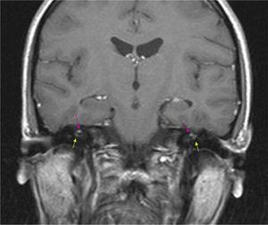 RMN craneal (coronal T1 con gadolinio). Micronódulos hiperintensos en T1 asociados a artefacto por desplazamiento químico (grasa) en ambos conductos auditivos internos (flechas superiores). Hipercaptación de la primera porción del facial derecho (intracanalicular) y de la segunda del facial izquierdo (laberíntica) (flechas inferiores).