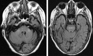 Resonancia magnética FLAIR potenciada en T2. Se observa una hiperintensidad en la región central de la protuberancia y en los pedúnculos cerebelosos medios.