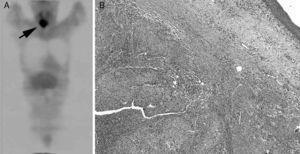 A) Tomografía de emisión de positrones con fluorodeoxiglucosa (FDG-PET) que muestra una actividad metabólica anormal en la región cervical. B) Microfotografía que muestra una tinción de hematoxilina-eosina del tumor con las características histológicas propias de un carcinoma epidermoide.
