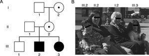 Familia y su genealogía con espectro de desórdenes relacionados con el SXF. A) En la genealogía, los individuos I.2 y II.2 presentan una premutación de 83 y 96 tripletes CGG y manifestaron insuficiencia ovárica prematura a los 35 y 36 años, respectivamente. Los individuos III.2 y III.3 son hermanos que presentan una mutación completa de 370 y 570 tripletes CGG, y fueron diagnosticados con SXF a los 5 y un año, respectivamente. B) Fotos de los integrantes de la familia descrita y su respectiva ubicación en la genealogía.