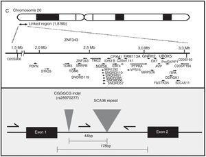 Situación de NOP56 en el brazo corto del cromosoma 20 y detalle de la expansión intrónica en la SCA36.