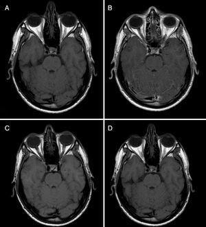 Resonancia magnética basal y de control del paciente, secuencias pre- y post-gadolinio. Comparación de las imágenes de RM basal pre-Gd (A) y post-Gd (B), se observa un leve realce leptomeníngeo en las folias cerebelosas superiores y vermianas. Comparación de la RM pre-Gd (C) con la RM post-Gd de control a los 3 meses, se objetiva una resolución de dicho realce leptomeníngeo.