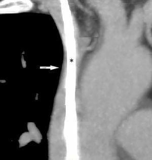 Tomografía computarizada de tórax con contraste, reconstrucción multiplanar. Se observa una ocupación de prácticamente toda la luz de la porción proximal de la vena cava superior (flecha) por parte del catéter (*).