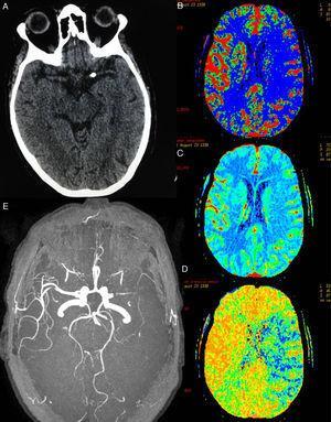 A) TC cerebral. Se aprecia calcio endoluminal en la ACM proximal izquierda. B-D) En los mapas TC-perfusión de flujo, volumen y tiempo de tránsito medio se identifica una amplia área del territorio de la ACM izquierda afectada que presenta un aumento del TTM (zona azul en D) y una disminución del flujo (zona azul en B). El mapa de volumen (C) no identifica zona de volumen disminuido significativo, el área afectada corresponde con amplia zona de penumbra. E) Estenosis preoclusiva del segmento M1 izquierdo, en secuencias angiográficas de RM 3D.
