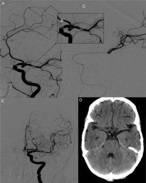 A) Angiografía selectiva de la carótida interna izquierda. Se observa un émbolo cálcico en la ACM izquierda. B) Imagen angiografía aumentada en la que se observa la casi oclusión del vaso. C) Embolectomía mediante dispositivo TREVO, procedimiento que cursa con éxito tras un solo pase, como se observa en la angiografía de control tras el procedimiento (D). E) TC cerebral de control con ausencia de material cálcico en el área teórica de la ACM izquierda.