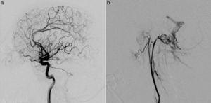 La arteriografía mostró una FAVD en la fosa posterior con aferentes arteriales de las arterias carótidas interna (a) y externa (b), y drenaje venoso a través de los senos transversos y sigmoides y venas corticales (Cognard II a + b).