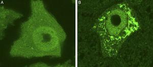 Se muestran 2 MN de un ratón control sano (A) y de un modelo de ratón transgénico de ELA (modelo SOD1G93A) teñidas con ubiquitina. Puede observarse cómo en el ratón sano no se observan inclusiones citoplasmáticas, mientras que el ratón transgénico (B) presenta múltiples agregados poliubiquitilados secundarios al colapso proteasomal.