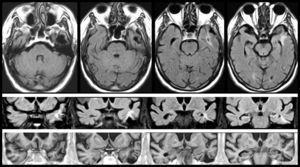 Resonancia magnética de un varón de 78 años con hipertensión arterial y presbiacusia, que tuvo un traumatismo con coma a los 53 años. A los 76 comenzó con episodios paroxísticos recurrentes con estado delirante y alucinatorio (visual y auditivo). Zona de encefalomalacia temporal izquierda con componente gliótico (filas superiores: FLAIR; fila inferior: T1-IR).