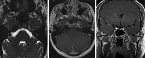 RM de seguimiento (a los 4 meses): se observa una resolución tanto del engrosamiento de las ramas mandibular, como maxilar del v PC, como de su captación de contraste.