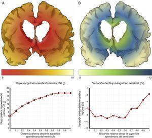 Flujo sanguíneo cerebral (FSC) de la región periventricular en la hidrocefalia crónica del adulto idiopática. A) Relación entre el FSC y la distancia desde la superficie ependimaria del ventrículo, mostrando una curva de tipo logaritmo18. B) Cuando se produce una sobrecarga volumétrica, el FSC cae en la zona de última pradera subependimaria, situada entre 5 y 15mm de la superficie ventricular.