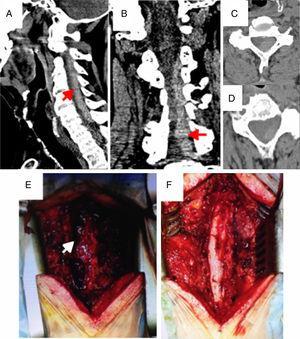 Imágenes preoperatorias de la TAC cervical urgente. Cortes sagital (A), coronal (B) y axial (C y D), que demuestran la existencia de una extensa colección hiperdensa a nivel epidural posterolateral izquierdo C3-7 (flechas, asterisco), compatible con HEEE. Dicha colección condiciona una marcada reducción del canal medular y un desplazamiento del cordón medular hacia la derecha. Imagen intraoperatoria tras realización de laminectomía cervical C3-7, en la que se observa la colección epidural cervical aguda posterolateral izquierda descrita previamente (E). Imagen intraoperatoria tras la evacuación completa del HEEE (F).