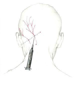 Abordaje del nervio occipital mayor en el punto de Arnold.