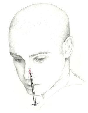 Abordaje del nervio nasal externo.