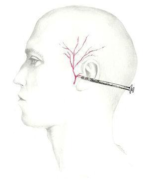 Abordaje del nervio auriculotemporal.