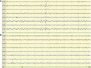 Ejemplo de registro de EEG urgente de 8 canales en el que vemos inicialmente anomalías epileptiformes (AE) de expresión generalizada, con predominio en regiones posteriores compatibles con EENC en un paciente con desconexión del medio (A) y posterior desaparición de las AE (B), observándose una actividad de fondo alfa posterior y ritmos rápidos anteriores tras administración de diacepam por vía intravenosa, acompañándose de mejoría clínica.