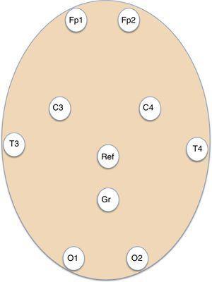 Esquema que muestra la disposición de los electrodos adhesivos para el montaje básico de 8 canales EEG de los registros de EEG urgentes. C: parietal; Fp: frontopolar; Gnd: ground (tierra); O: occipital; Ref: referencial; T: temporal.
