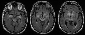 RM craneal (cortes axiales, secuencias FLAIR) en paciente con encefalitis límbica, diencefálica y mesencefálica asociada a anticuerpos anti-Ma.