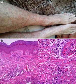 Nódulos eritematosos característicos del síndrome de Sweet (a). Biopsia cutánea: Tinción con hematoxilina y eosina, se evidencia un infiltrado neutrofílico intradérmico sin afectación vascular ni microtrombos (b y c).