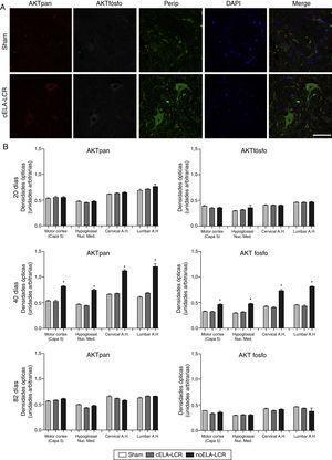 Expresión de panAKT (AKTpan) y fosfoAKT (AKTfosfo) en varias regiones del sistema nervioso central de los 3 grupos de ratas. A)Imágenes de microscopia confocal de la expresión de panAKT, fosfoAKT y periferina (perip). B)Análisis de fosfoAKT y panAKT de cuantificación de densidades ópticas. Se observaron mayores expresiones de AKTpan y fosfoAKT a los 45días en el grupo de cELA-LCR (A y B). Un fenómeno interesante en el grupo de cELA-LCR fue el incremento en la expresión de periferina, fosfoAKT y panAKT en las neuronas (A). En el día 82 después de la cirugía, las concentraciones de AKT (pan y fosfo) fueron similares a los de los grupos sham y no ELA-LCR, la expresión se había regresado a niveles similares a los observados en los otros grupos a los 82días de la cirugía días post (B). Escala: 50μm.