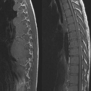La resonancia magnética dorsolumbar mostró una compresión medular por masas paravertebrales y epidurales en D5 y D9, con signos de mielopatía desde D9, donde el componente paravertebral alcanzaba 6,8×5,1cm. En la columna lumbar aparecieron múltiples nódulos que comprimían el saco tecal, todos ellos compatibles con hematopoyesis extramedular.