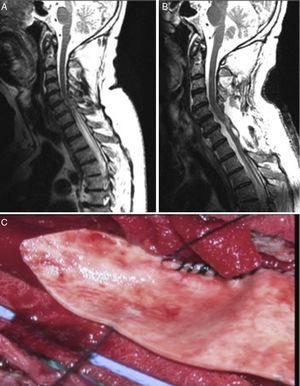 A) RM secuencia T2 sagital que muestra siringomielia D1-D5. B) RM sagital T2 posquirúrgica que muestra resolución del cuadro. C) Imagen quirúrgica de duraplastia en proceso.