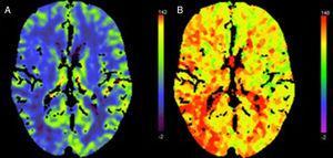 TC cerebral de perfusión correspondiente al paciente 7. Focalidad hemisférica derecha (NIHSS: 6). A) Disminución flujo hemisférico derecho. B) Alargamiento Tmáx en región cortical similar. No distribución en claro territorio vascular. No oclusión arterial en la angio-TC.