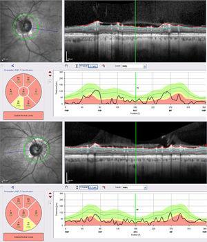 Tomografía de coherencia óptica en la que se observa atrofia grave en la capa de fibras nerviosas peripapilar de ambos nervios ópticos.