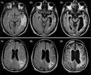 1.a y 1.b). RM axial FLAIR (12 meses después del inicio de los síntomas): áreas difusas hiperintensas corticosubcorticales en los lóbulos parietal y temporal. 2.a, 2.b, 3.a. y 3.b) RM axial FLAIR (26 meses y 8 años después del inicio de la clínica, respectivamente): evolución progresiva, con atrofia cerebral y de tronco severas y lesión difusa y extensa de la sustancia blanca periventricular.