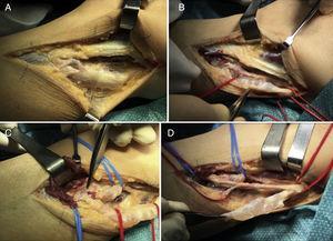 (A) Abordaje lateral por planos. (B) Disección y delimitación del ganglión, apreciándose su composición quística. (C) Obsérvese la zona de conexión con la articulación tibioperonea superior señalada por la pinza de disección junto con la rama articular. (D) Epineurotomía y exéresis del ganglión intraneural.