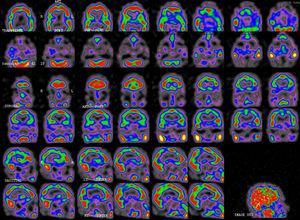 Tomografía computarizada de emisión monofotónica (SPECT) día 16 (segundo episodio): moderada hipoperfusión temporoparietal bilateral de predominio izquierdo, con discreta afectación del córtex frontal dorsolateral y occipital.