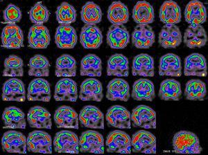 SPECT de control 2 meses tras la resolución clínica: mejoría de la perfusión cortical cerebral con persistencia de leve-moderada hipoperfusión temporoparietal bilateral.