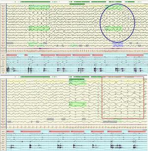 Videopolisomnografía nocturna. Se observa dentro del círculo la fase 1 del patrón alternante cíclico (PAC) correspondiente a un arousal postevento respiratorio, donde se observa una actividad generalizada de ondas bi o trifásicas a 1Hz asociada a un aumento de la frecuencia cardiaca. El cuadrado señala la fase 2 del PAC, caracterizada por ondas lentas difusas, destacando la ausencia de grafoelementos típicos de las distintas fases del sueño.