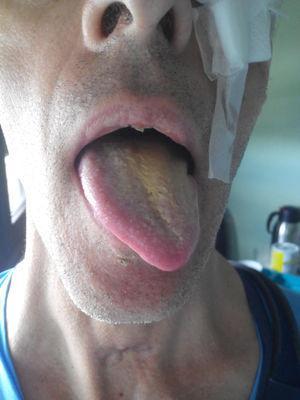 Protrusión lingual asimétrica con desviación hacia la izquierda debido a lesión periférica del xii par izquierdo.