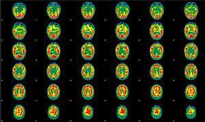 SPECT de perfusión cerebral inicial realizada tras la administración de 925MBq de 99mTc-HMPAO. Se muestran cortes tomográficos representativos en proyección transaxial. Mediante valoración cualitativa se objetiva una función cortical irregular en ambos hemisferios, con áreas de hipoactividad más intensas en la región frontal anterior y orbitaria, así como mesial temporal del hemisferio derecho. En el lado izquierdo se observan defectos en la región frontoorbitaria, así como temporobasilar y mesial. En núcleos basales es evidente una asimetría estando disminuida la actividad en el lado derecho, sin que sean evidentes alteraciones en cerebelo.