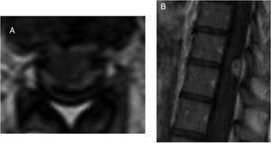 A) RM con realce meníngeo espinal a nivel dorsal en corte axial tras gadolinio. B) Lesión captante de contraste extraaxial posterior a nivel D10 sugerente de absceso en secuencia T1 sagital con gadolinio.