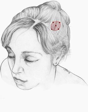 Esquema de infiltración en cefalea numular. El número de puntos así como la dosis de onabotA dependerán del tamaño del área sintomática.